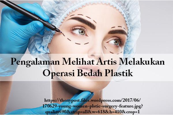 Pengalaman Melihat Artis Melakukan Operasi Bedah Plastik